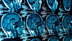 Средства для диагностики ЯМР-томографией (Дипентаст ®)